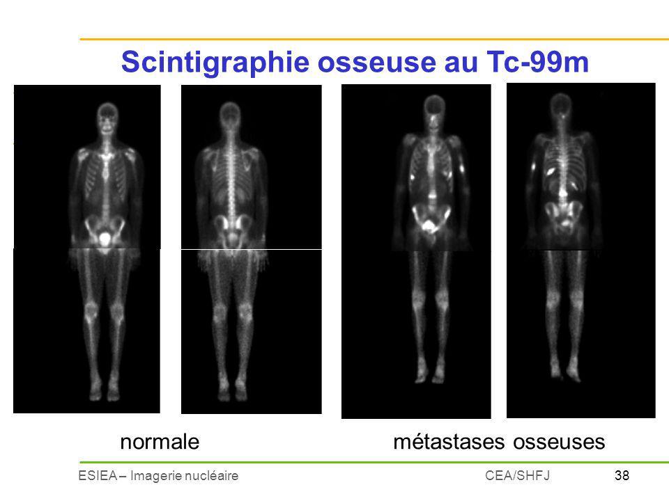 Scintigraphie osseuse au Tc-99m