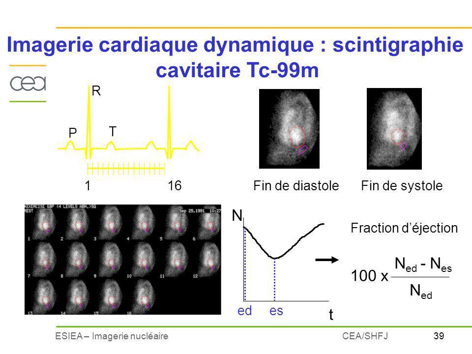 Imagerie cardiaque dynamique : scintigraphie