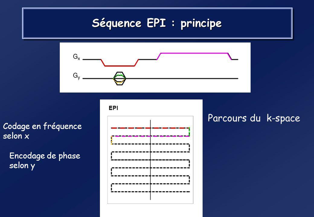 Séquence EPI : principe