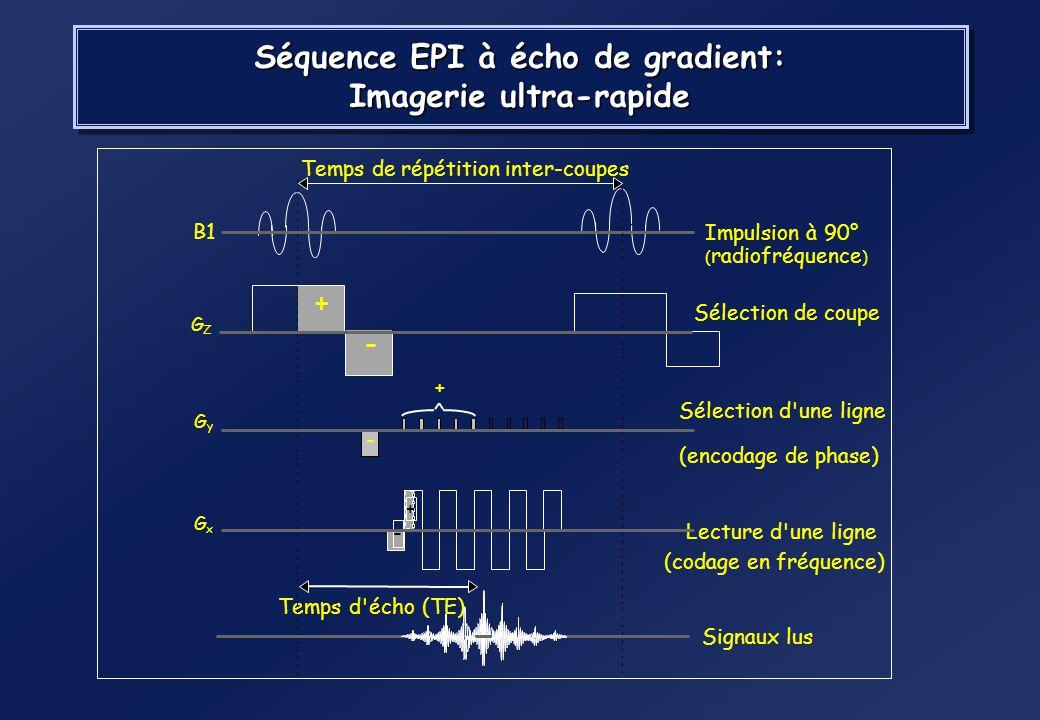 Séquence EPI à écho de gradient: Imagerie ultra-rapide