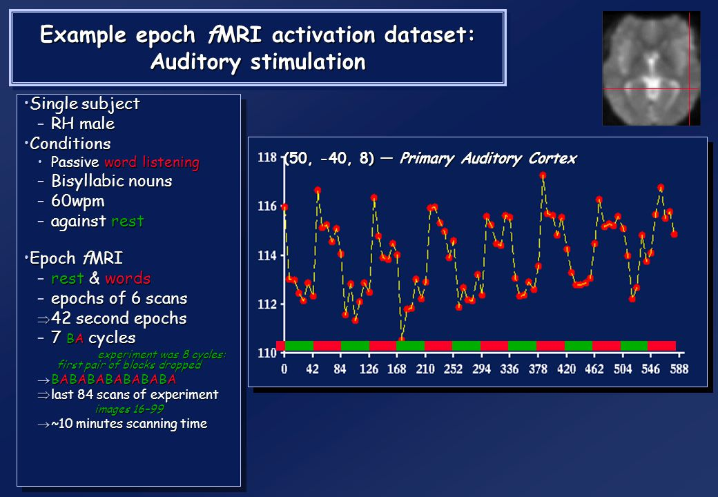 Example epoch fMRI activation dataset: Auditory stimulation