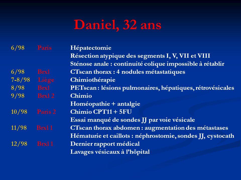 Daniel, 32 ans 6/98 Paris Hépatectomie