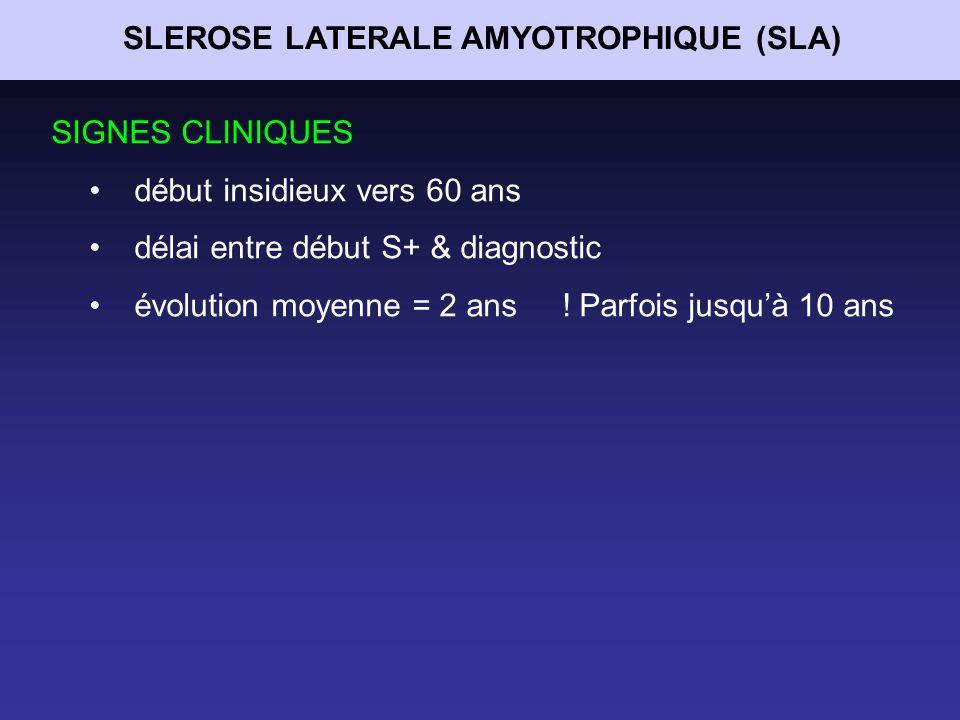 SLEROSE LATERALE AMYOTROPHIQUE (SLA)
