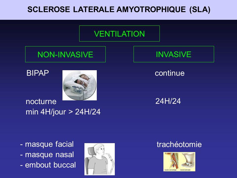 SCLEROSE LATERALE AMYOTROPHIQUE (SLA)