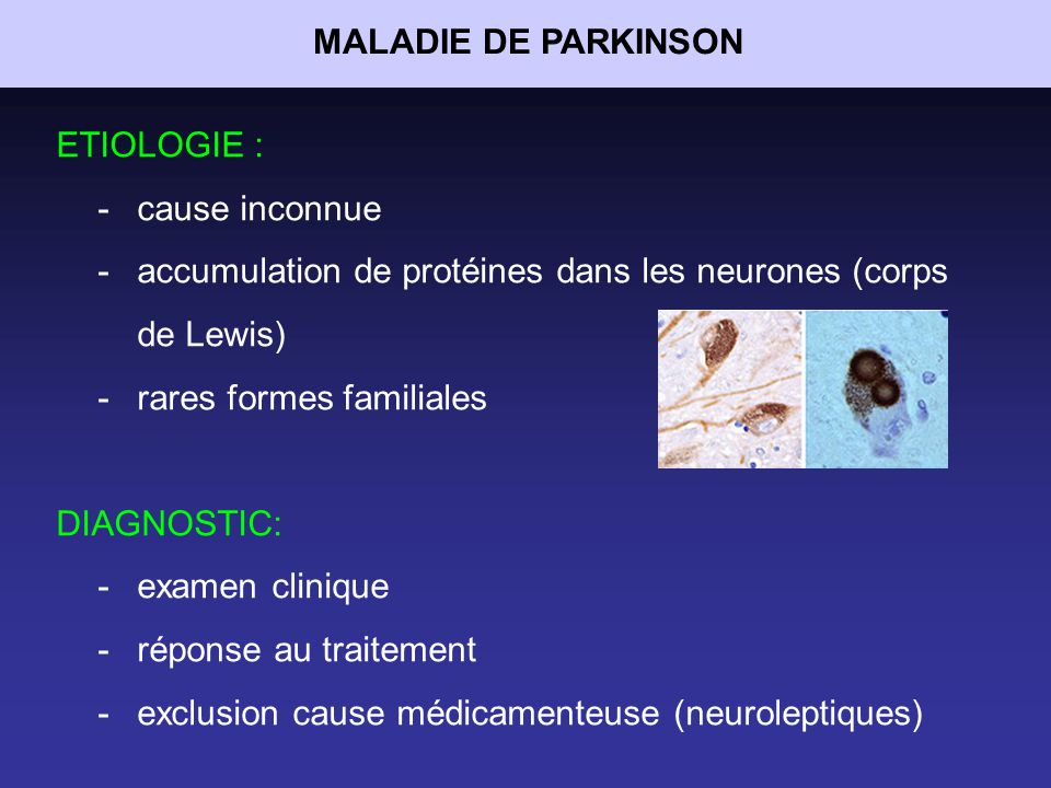 MALADIE DE PARKINSON ETIOLOGIE : cause inconnue. accumulation de protéines dans les neurones (corps de Lewis)