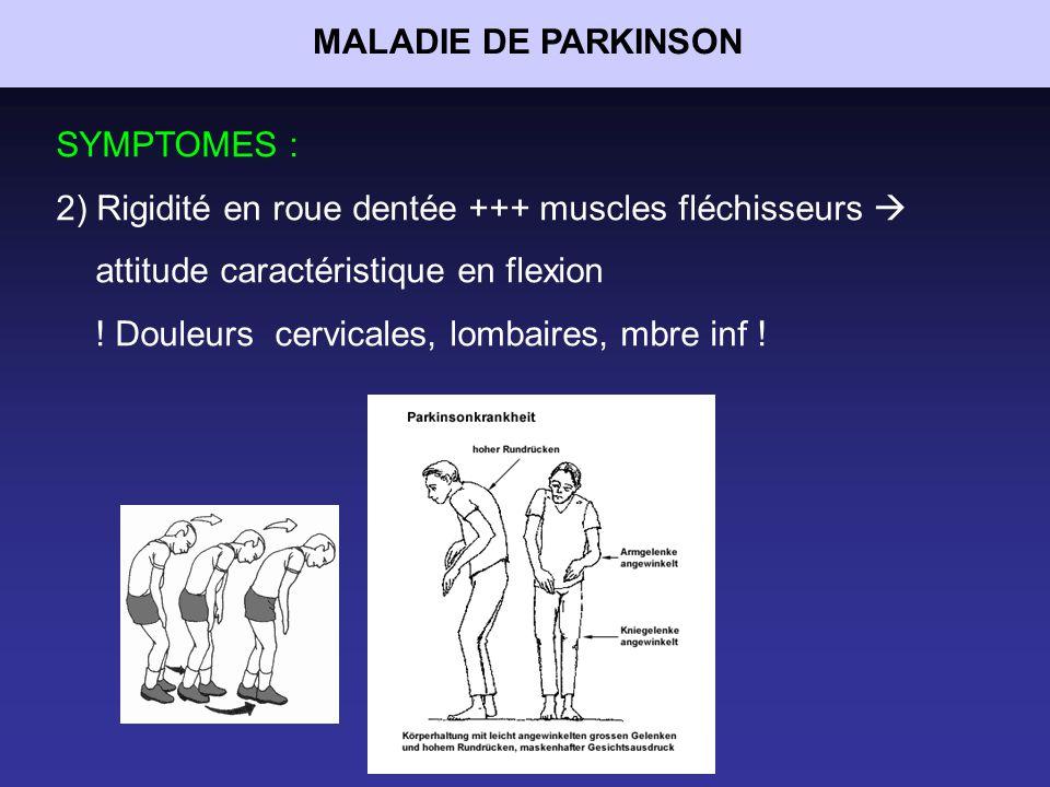 MALADIE DE PARKINSON SYMPTOMES : 2) Rigidité en roue dentée +++ muscles fléchisseurs  attitude caractéristique en flexion.