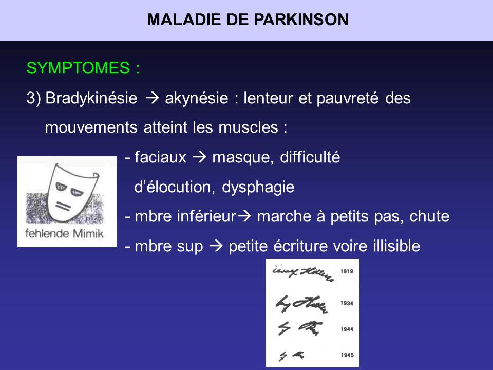 MALADIE DE PARKINSON SYMPTOMES : 3) Bradykinésie  akynésie : lenteur et pauvreté des mouvements atteint les muscles :