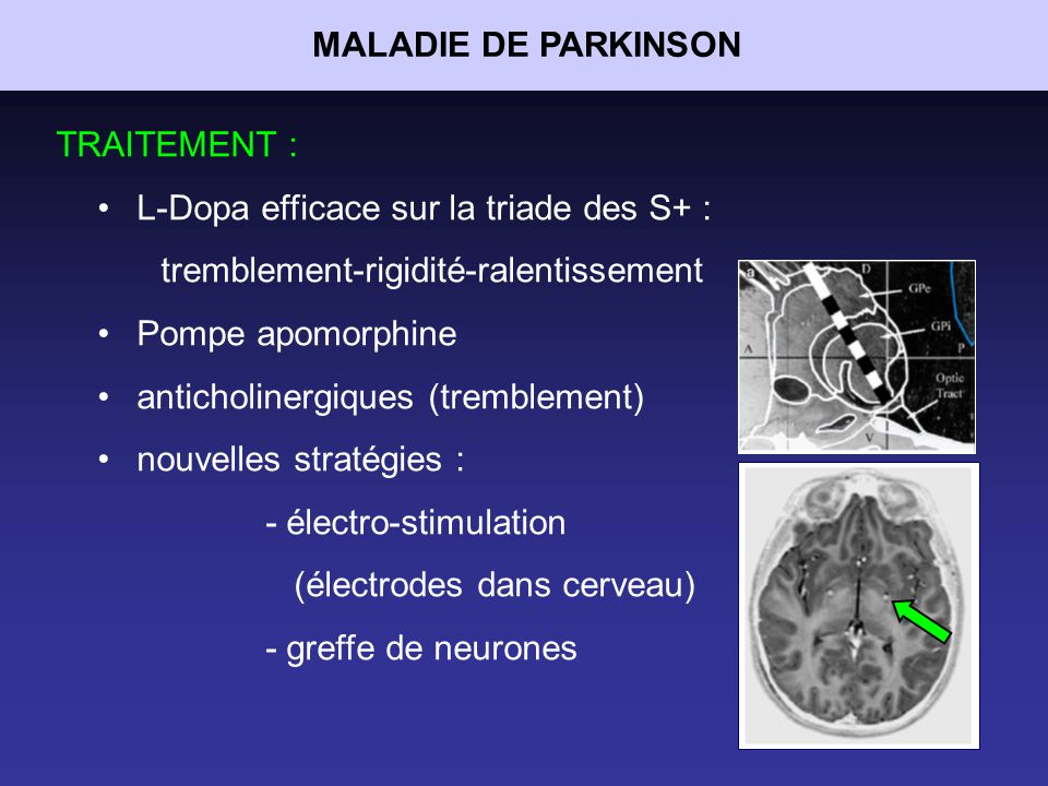 MALADIE DE PARKINSON TRAITEMENT : L-Dopa efficace sur la triade des S+ : tremblement-rigidité-ralentissement.