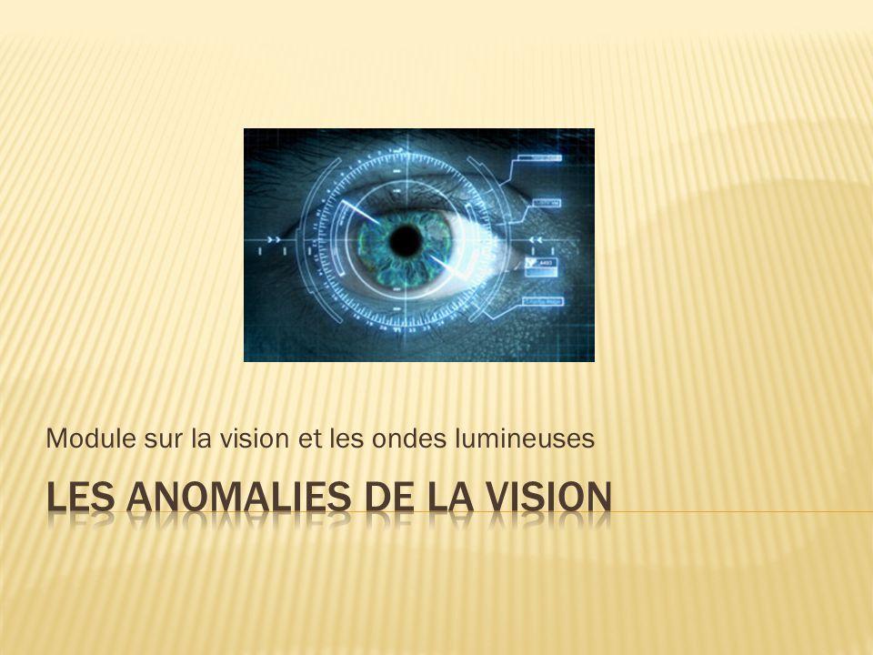 Les anomalies de la vision
