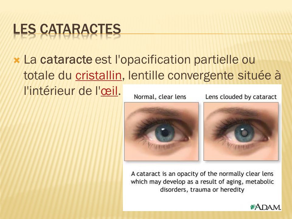 Les cataractes La cataracte est l opacification partielle ou totale du cristallin, lentille convergente située à l intérieur de l œil.