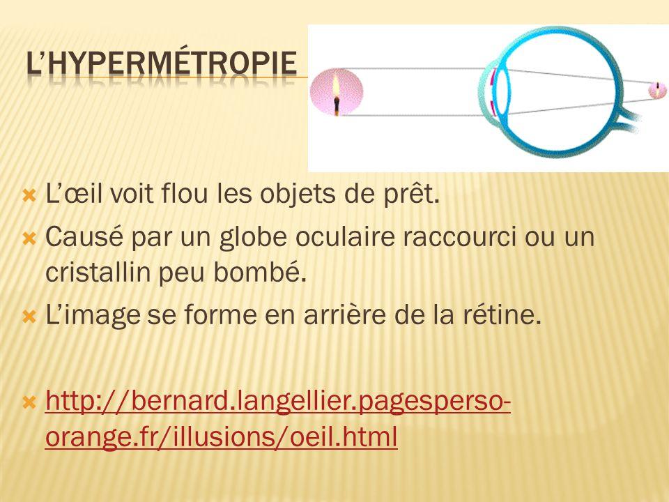 L'hypermétropie L'œil voit flou les objets de prêt.