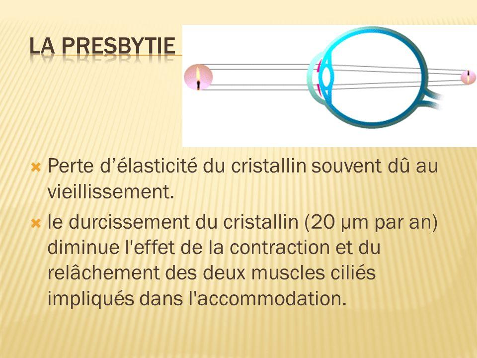 La presbytie Perte d'élasticité du cristallin souvent dû au vieillissement.