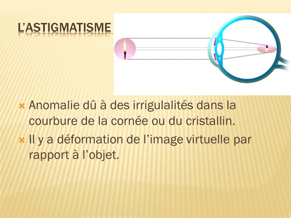 L'astigmatisme Anomalie dû à des irrigulalités dans la courbure de la cornée ou du cristallin.