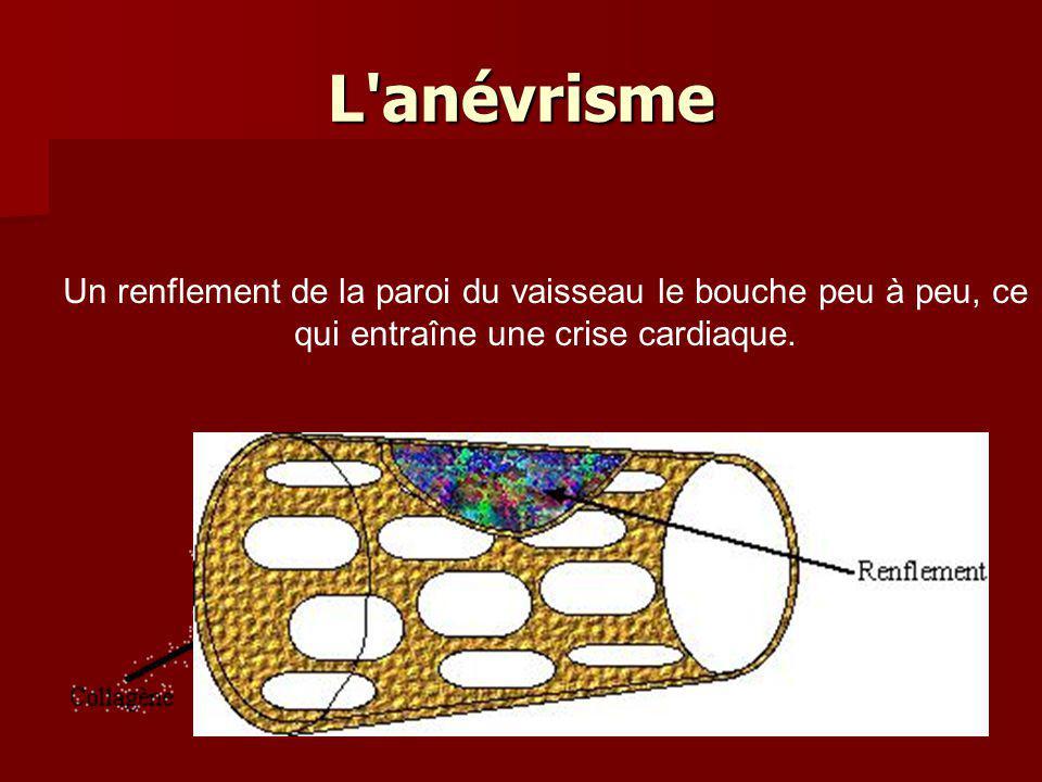 L anévrisme Un renflement de la paroi du vaisseau le bouche peu à peu, ce qui entraîne une crise cardiaque.