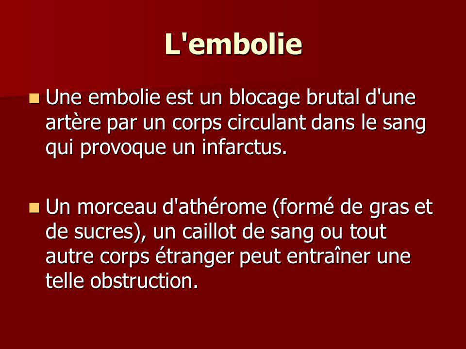 L embolie Une embolie est un blocage brutal d une artère par un corps circulant dans le sang qui provoque un infarctus.