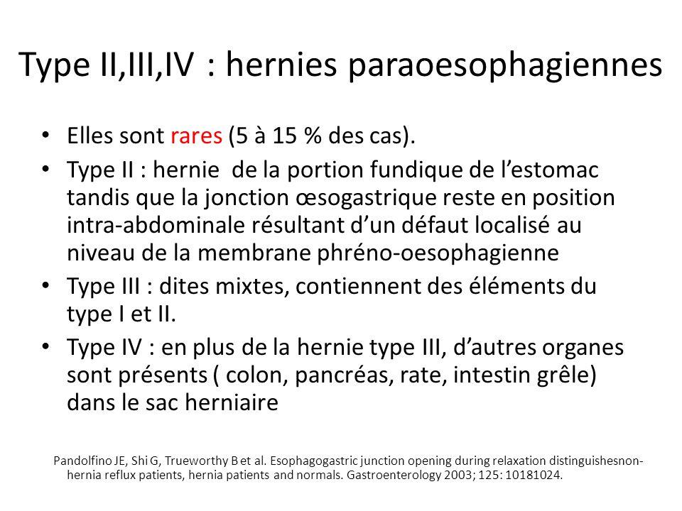 Type II,III,IV : hernies paraoesophagiennes