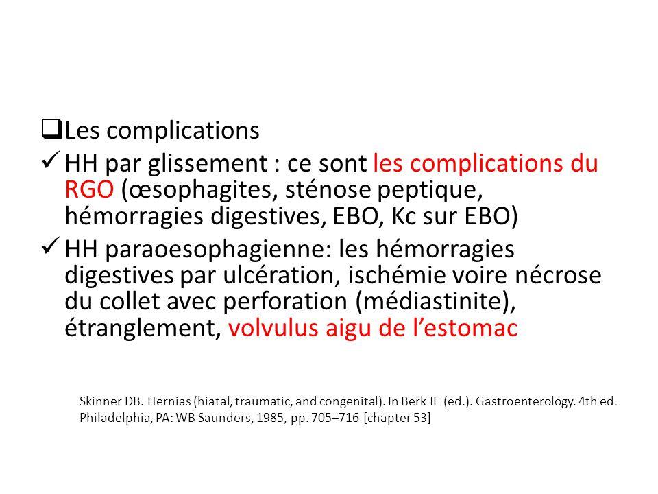 Les complications HH par glissement : ce sont les complications du RGO (œsophagites, sténose peptique, hémorragies digestives, EBO, Kc sur EBO)