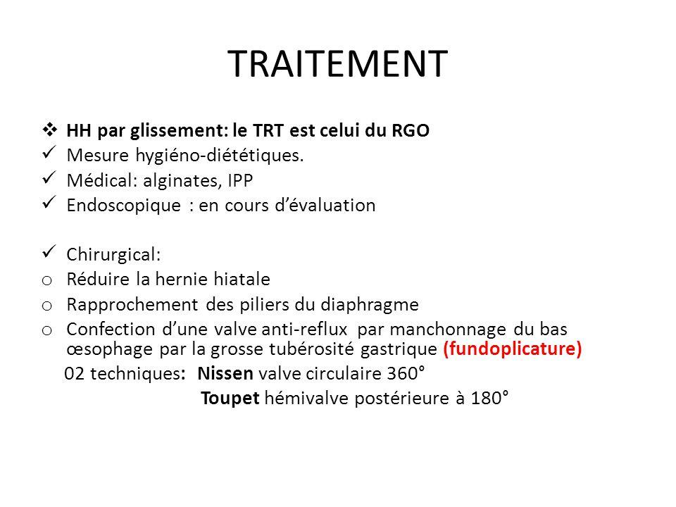 TRAITEMENT HH par glissement: le TRT est celui du RGO