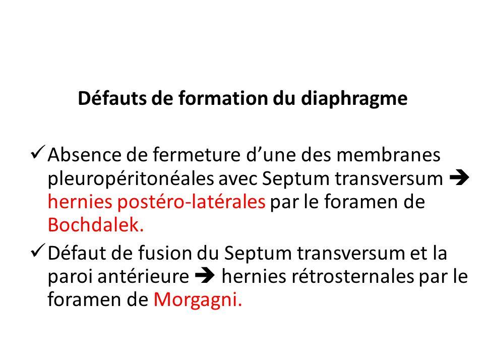 Défauts de formation du diaphragme