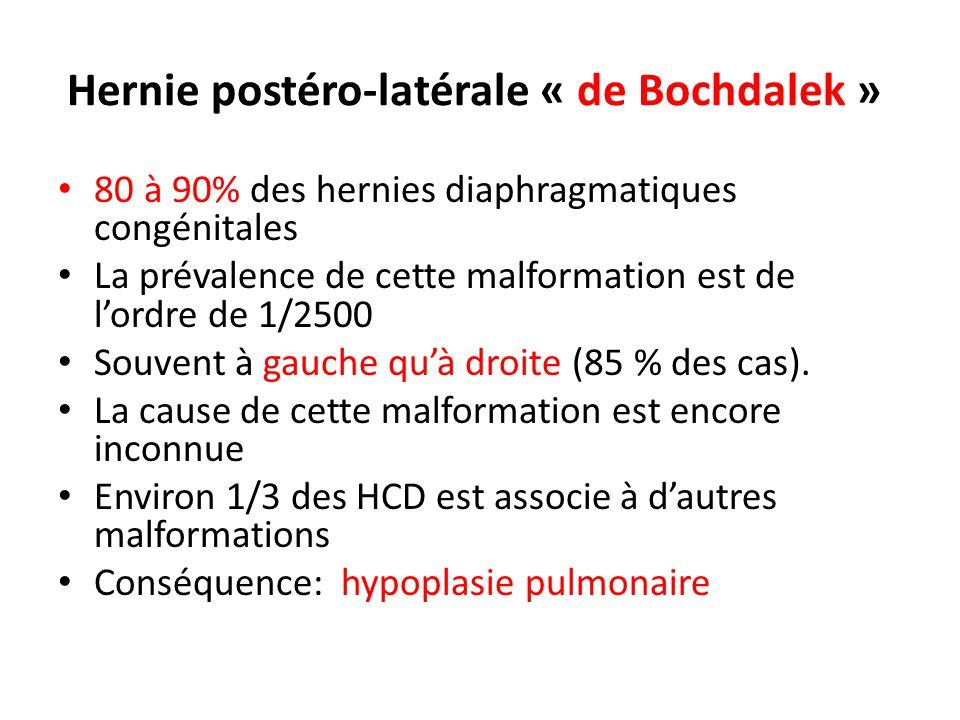 Hernie postéro-latérale « de Bochdalek »