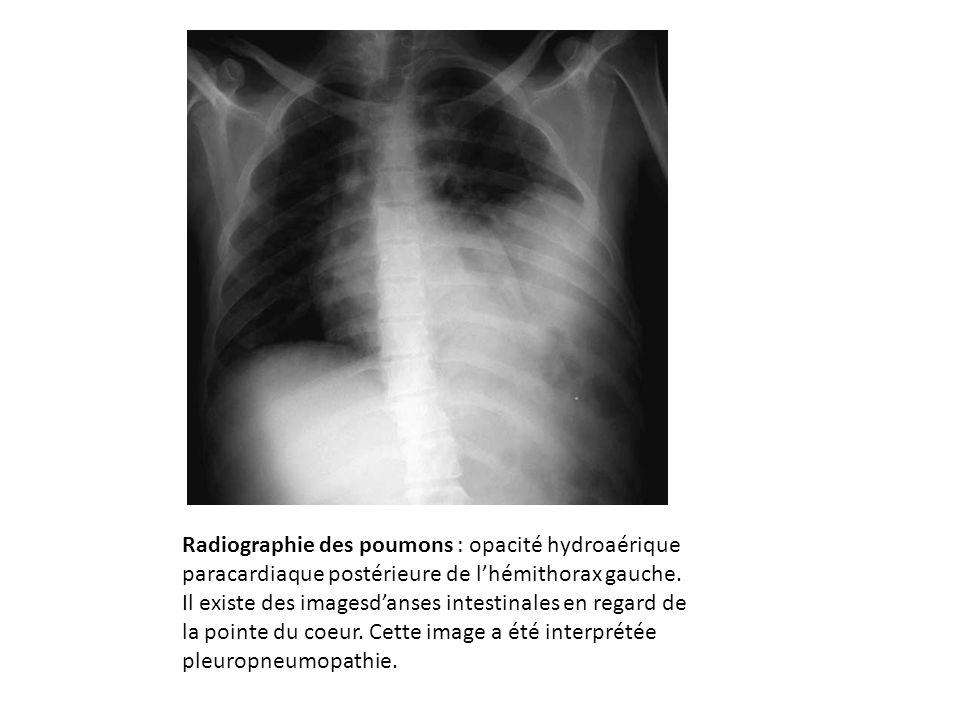 Radiographie des poumons : opacité hydroaérique paracardiaque postérieure de l'hémithorax gauche.