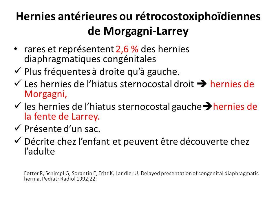 Hernies antérieures ou rétrocostoxiphoïdiennes de Morgagni-Larrey