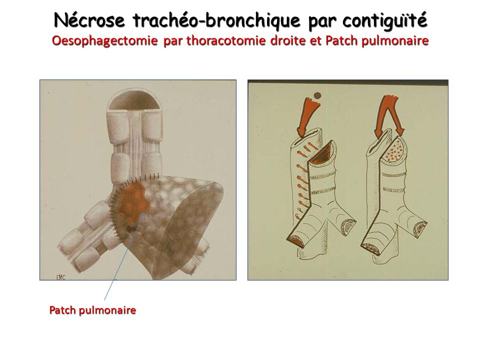 Nécrose trachéo-bronchique par contiguïté