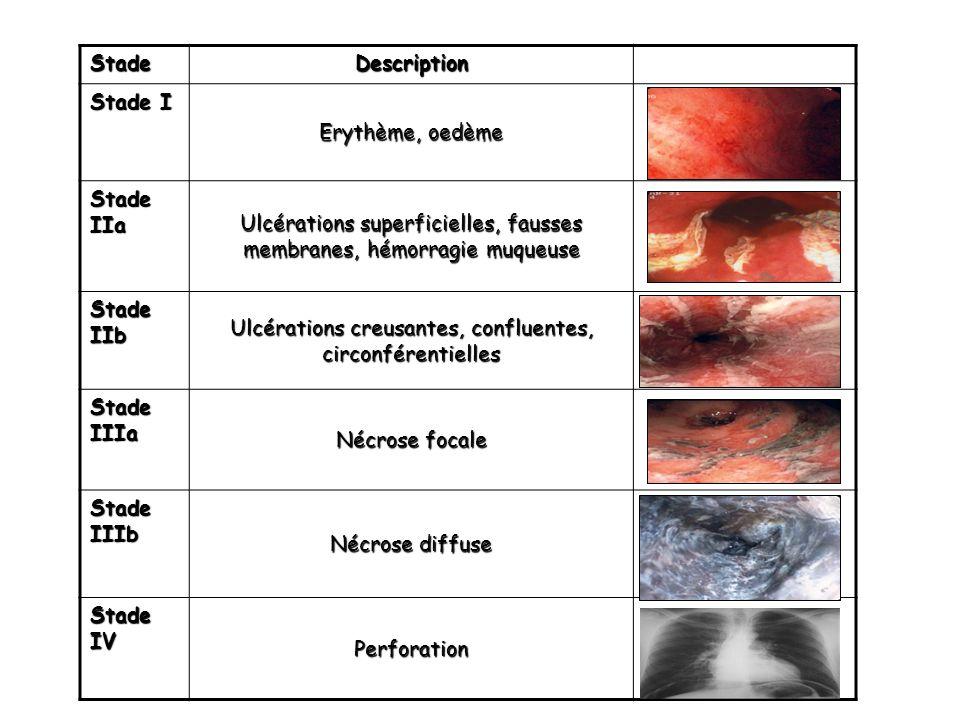 Ulcérations superficielles, fausses membranes, hémorragie muqueuse