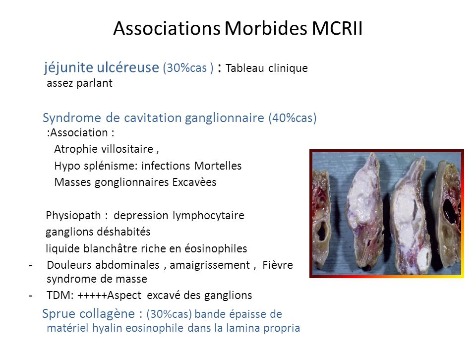 Associations Morbides MCRII