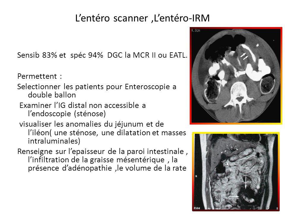 L'entéro scanner ,L'entéro-IRM