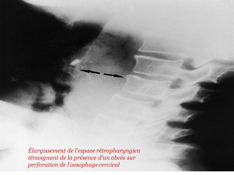 Élargissement de l'espace rétropharyngien témoignant de la présence d'un abcès sur