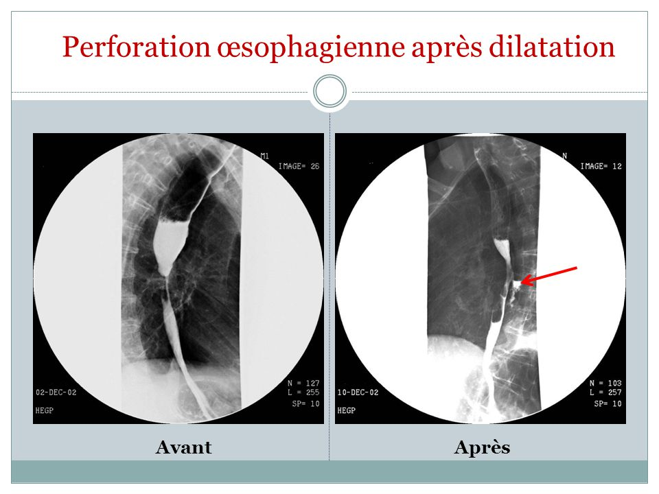 Perforation œsophagienne après dilatation
