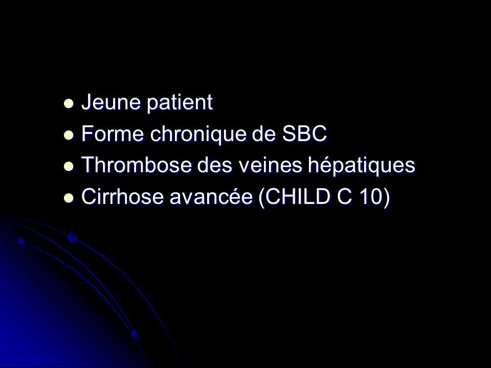 Jeune patient Forme chronique de SBC Thrombose des veines hépatiques Cirrhose avancée (CHILD C 10)