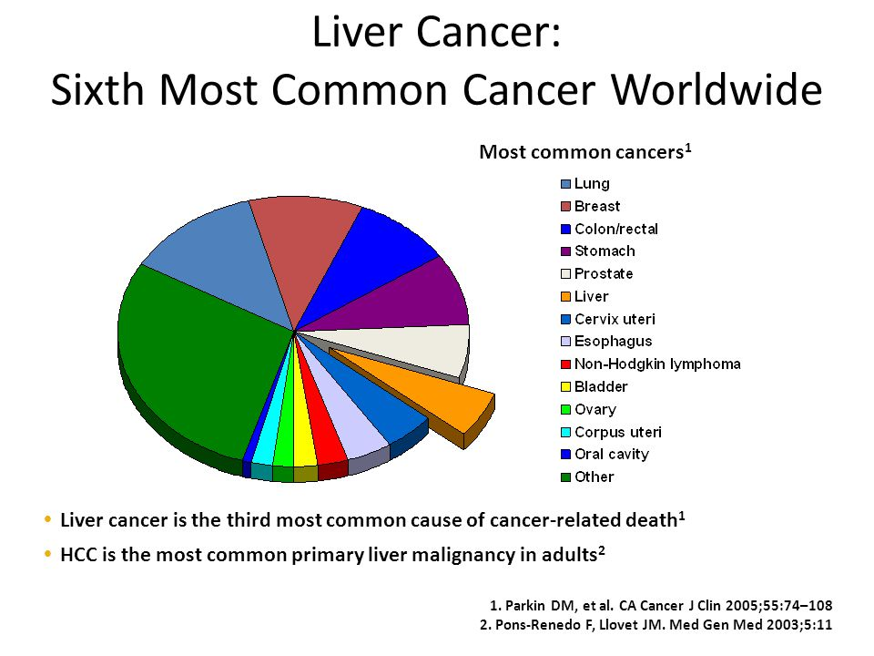 Liver Cancer: Sixth Most Common Cancer Worldwide