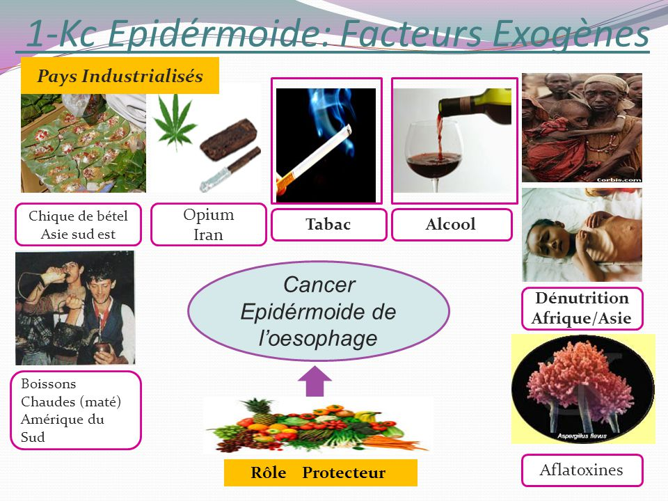 1-Kc Epidérmoide: Facteurs Exogènes