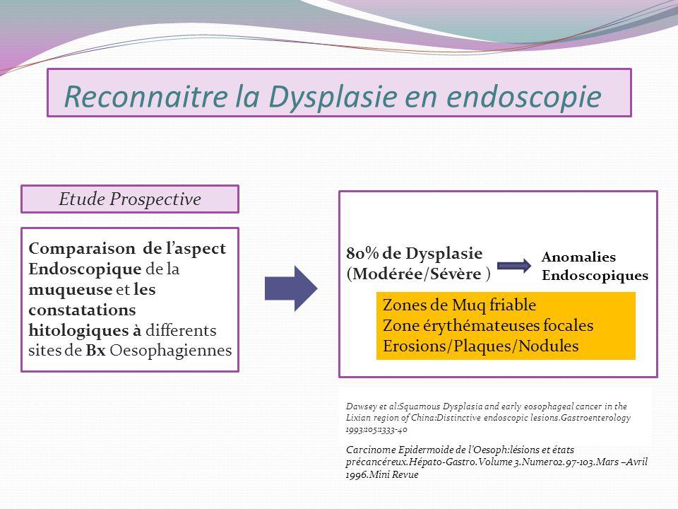 Reconnaitre la Dysplasie en endoscopie