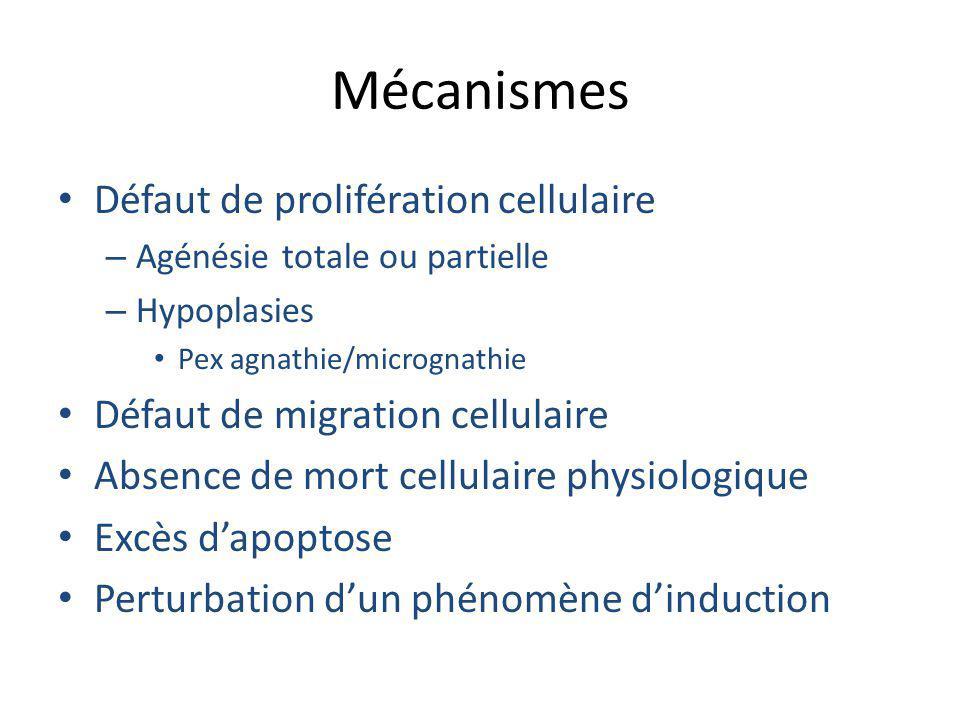 Mécanismes Défaut de prolifération cellulaire
