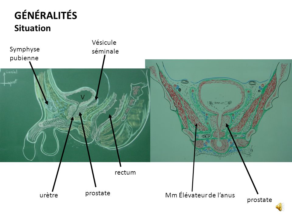 GÉNÉRALITÉS Situation Vésicule séminale Symphyse pubienne V rectum