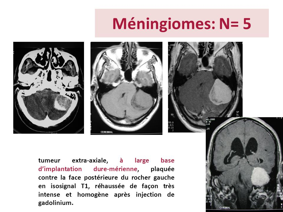 Méningiomes: N= 5