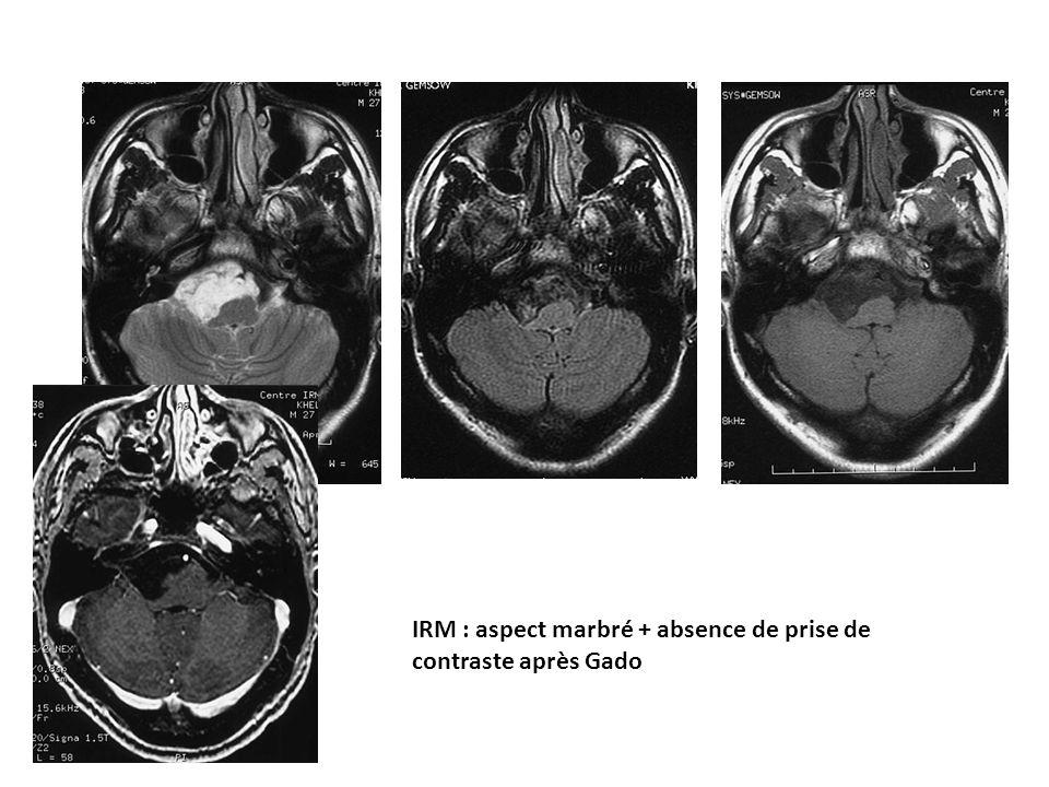 IRM : aspect marbré + absence de prise de contraste après Gado