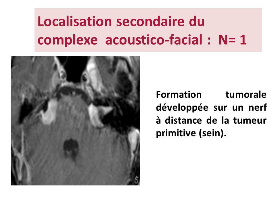 Localisation secondaire du complexe acoustico-facial : N= 1