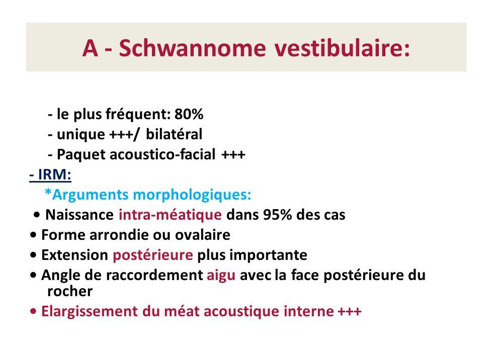 A - Schwannome vestibulaire: