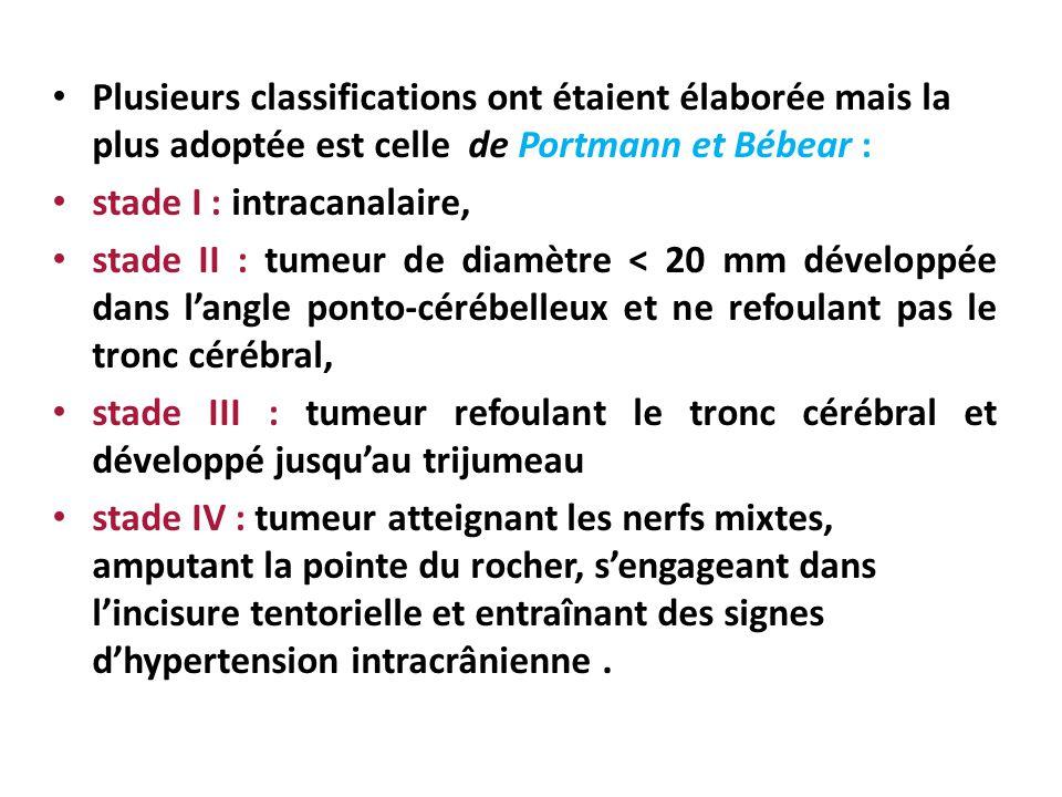 Plusieurs classifications ont étaient élaborée mais la plus adoptée est celle de Portmann et Bébear :