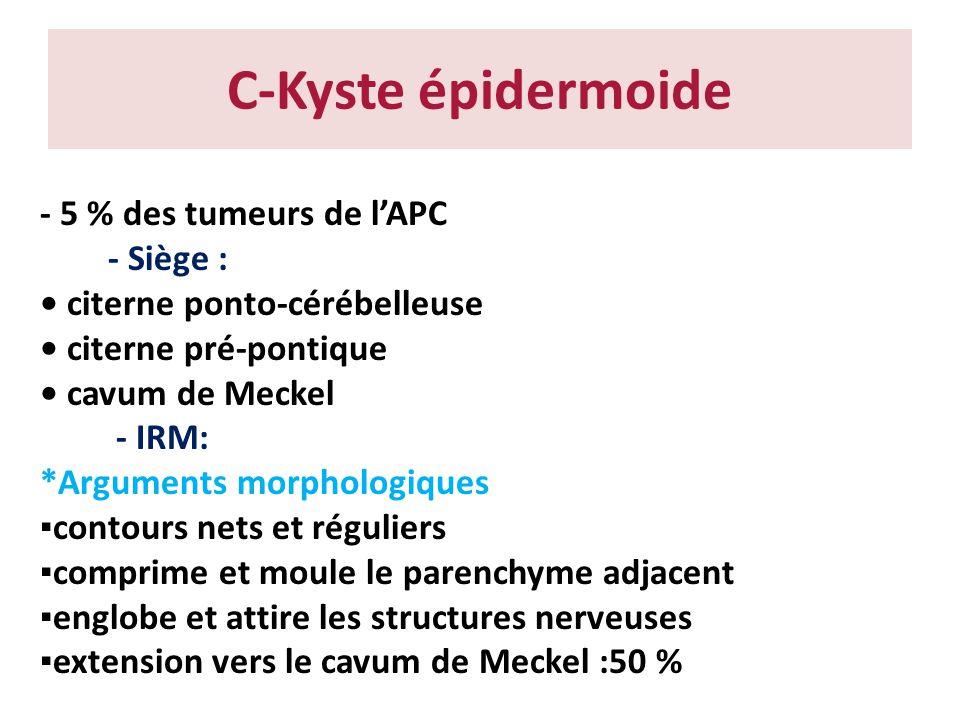 C-Kyste épidermoide