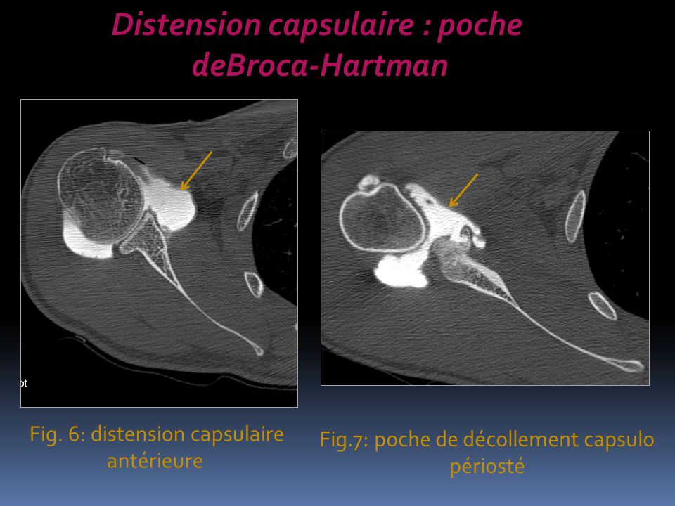 Distension capsulaire : poche