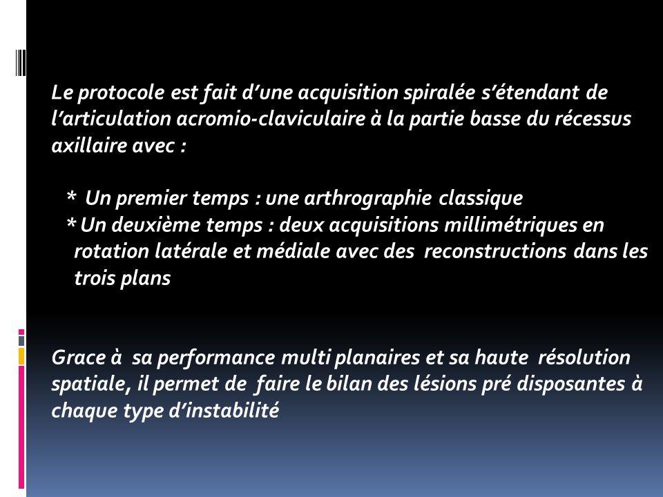 Le protocole est fait d'une acquisition spiralée s'étendant de l'articulation acromio-claviculaire à la partie basse du récessus axillaire avec :