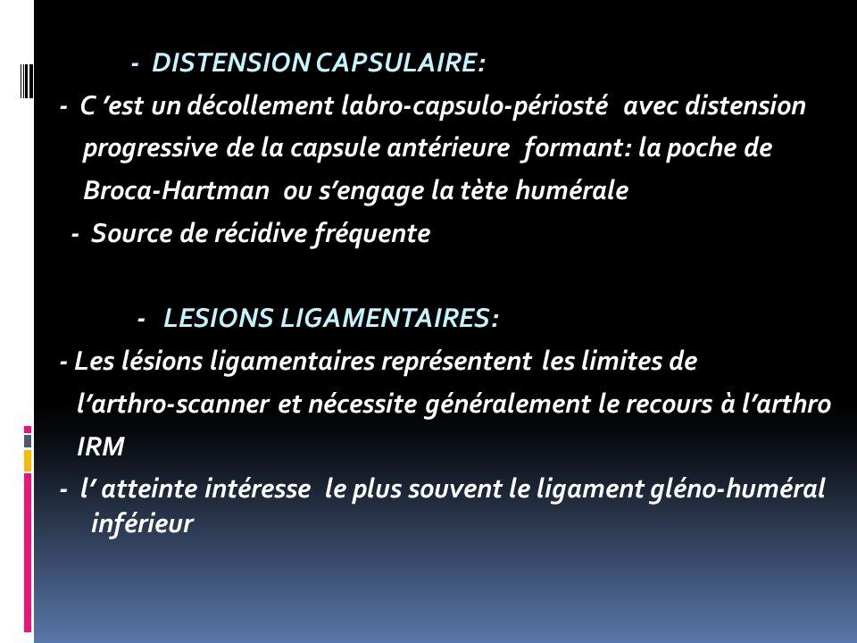 - DISTENSION CAPSULAIRE: - C 'est un décollement labro-capsulo-périosté avec distension progressive de la capsule antérieure formant: la poche de Broca-Hartman ou s'engage la tète humérale - Source de récidive fréquente - LESIONS LIGAMENTAIRES: - Les lésions ligamentaires représentent les limites de l'arthro-scanner et nécessite généralement le recours à l'arthro IRM - l' atteinte intéresse le plus souvent le ligament gléno-huméral inférieur