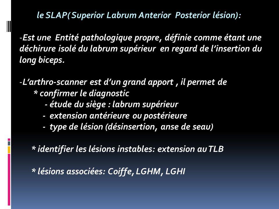 le SLAP( Superior Labrum Anterior Posterior lésion):