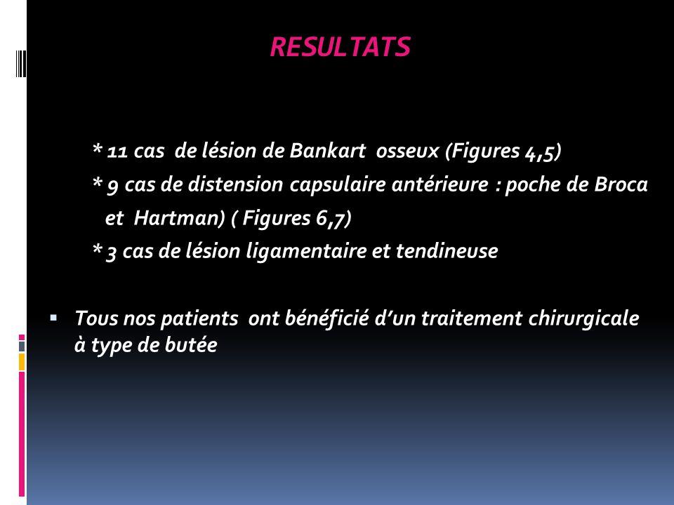 RESULTATS * 11 cas de lésion de Bankart osseux (Figures 4,5)