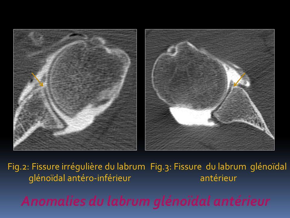 Anomalies du labrum glénoïdal antérieur